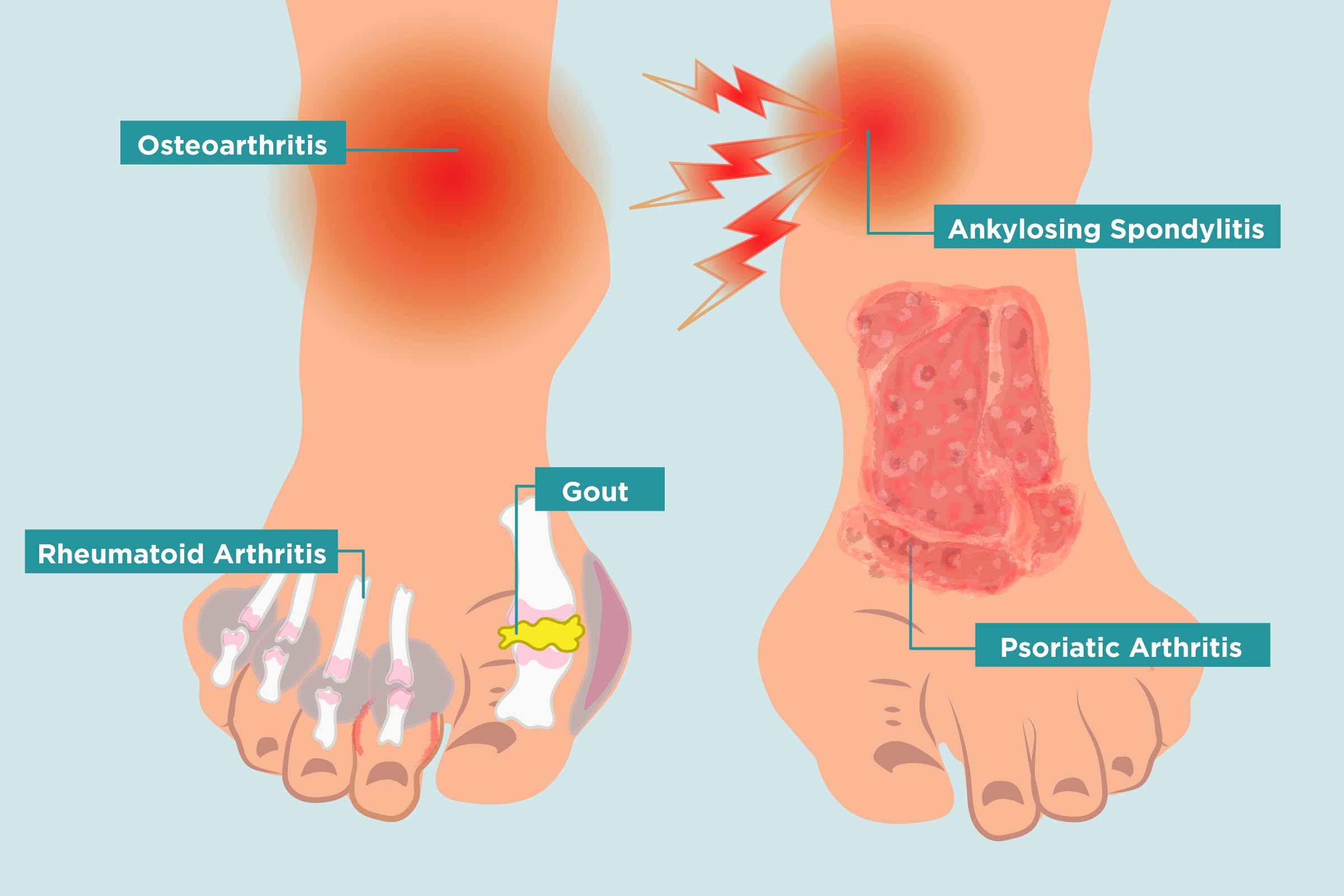 How Arthritis Strikes Your Feet, and 11 Ways to Heal Your Arthritis Foot  Pain - CreakyJoints Australia