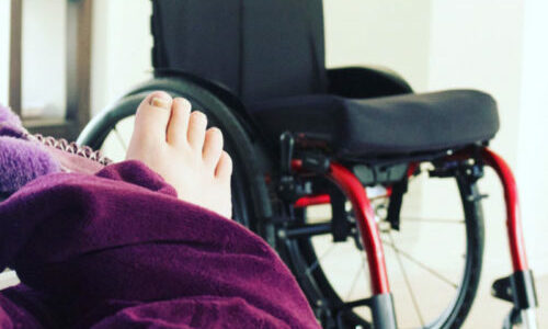 NDIS patient story