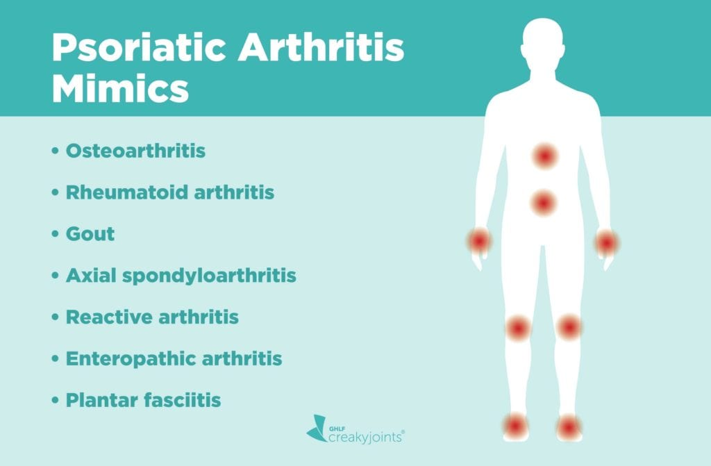 Psoriatic Arthritis Mimics